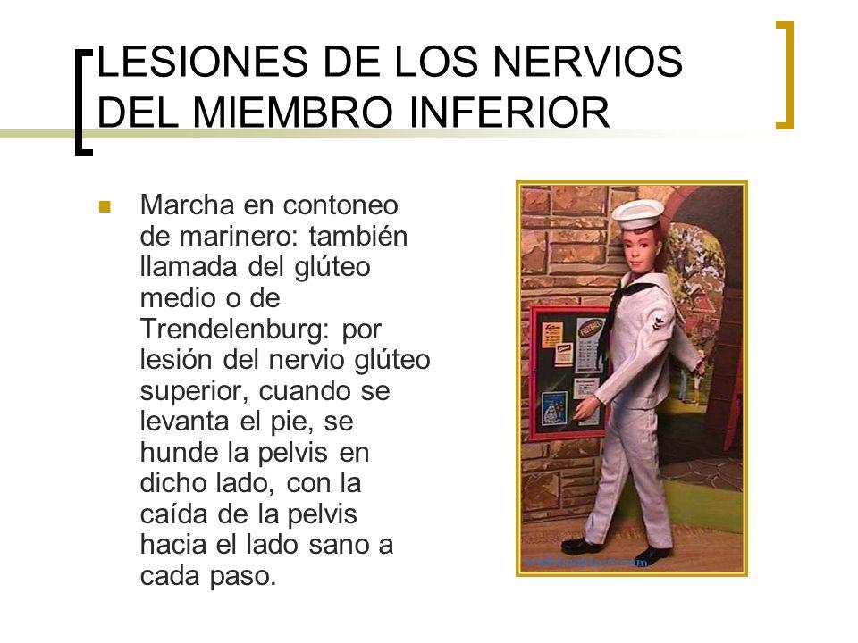 LESIONES DE LOS NERVIOS DEL MIEMBRO INFERIOR Marcha en contoneo de marinero: también llamada del glúteo medio o de Trendelenburg: por lesión del nervi