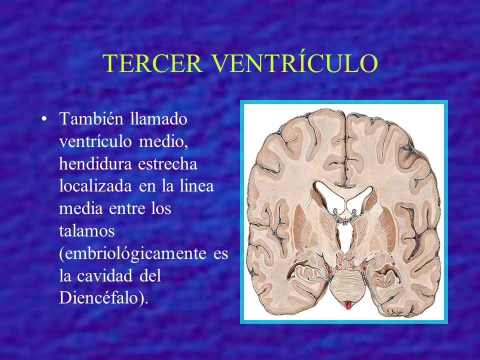 TERCER VENTRÍCULO También llamado ventrículo medio, hendidura estrecha localizada en la linea media entre los talamos (embriológicamente es la cavidad