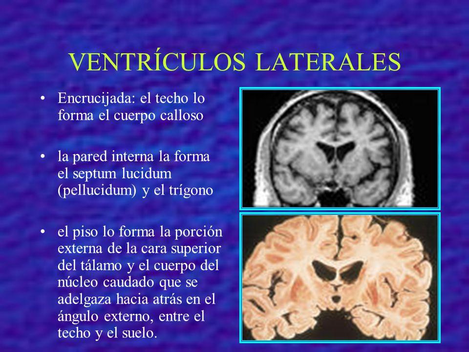VENTRÍCULOS LATERALES Encrucijada: el techo lo forma el cuerpo calloso la pared interna la forma el septum lucidum (pellucidum) y el trígono el piso l