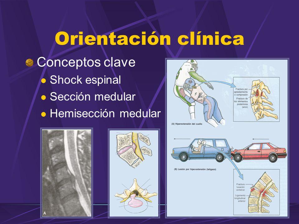 Conceptos clave Shock espinal Sección medular Hemisección medular Orientación clínica