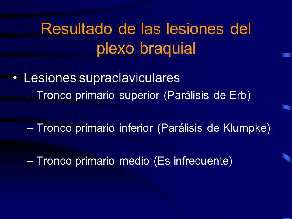 Lesiones supraclaviculares –Tronco primario superior (Parálisis de Erb) –Tronco primario inferior (Parálisis de Klumpke) –Tronco primario medio (Es in