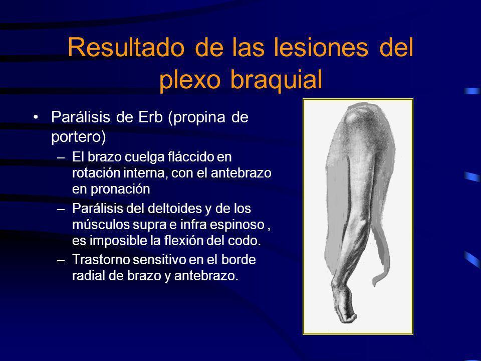 Parálisis de Erb (propina de portero) –El brazo cuelga fláccido en rotación interna, con el antebrazo en pronación –Parálisis del deltoides y de los m