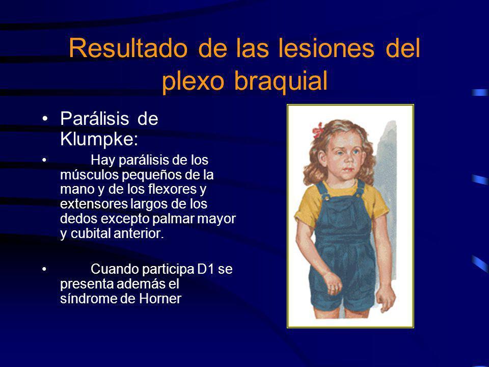 Parálisis de Klumpke: Hay parálisis de los músculos pequeños de la mano y de los flexores y extensores largos de los dedos excepto palmar mayor y cubi