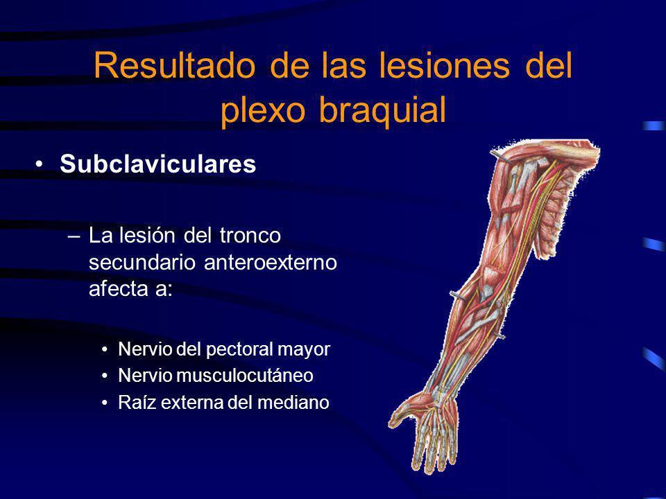 Subclaviculares –La lesión del tronco secundario anterointerno afecta: Raíz interna del mediano Nervio cubital Braquial cutáneo interno y su accesorio Resultado de las lesiones del plexo braquial