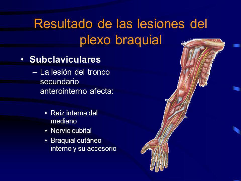 Lesiones supraclaviculares –Tronco primario superior (Parálisis de Erb) –Tronco primario inferior (Parálisis de Klumpke) –Tronco primario medio (Es infrecuente) Resultado de las lesiones del plexo braquial