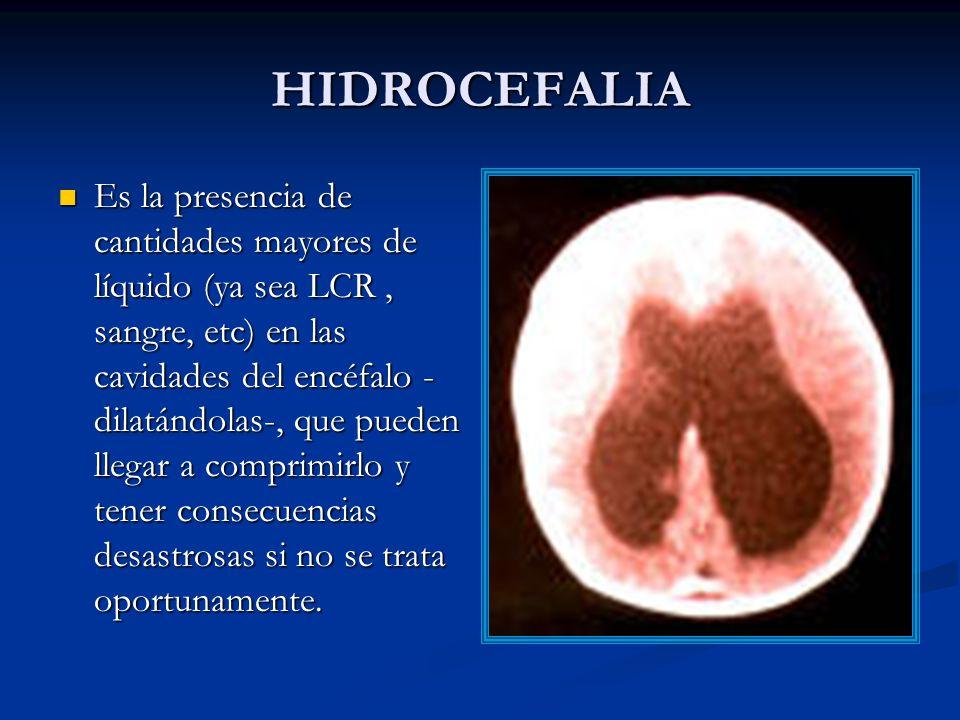 HIDROCEFALIA Es la presencia de cantidades mayores de líquido (ya sea LCR, sangre, etc) en las cavidades del encéfalo - dilatándolas-, que pueden llegar a comprimirlo y tener consecuencias desastrosas si no se trata oportunamente.