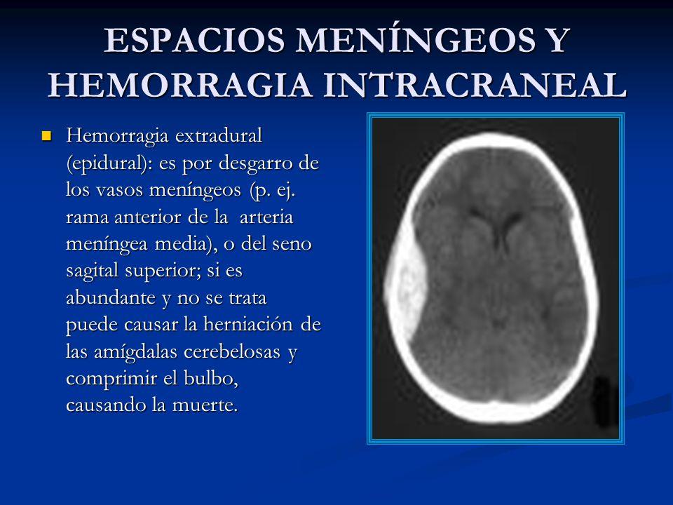 ESPACIOS MENÍNGEOS Y HEMORRAGIA INTRACRANEAL Hemorragia extradural (epidural): es por desgarro de los vasos meníngeos (p.