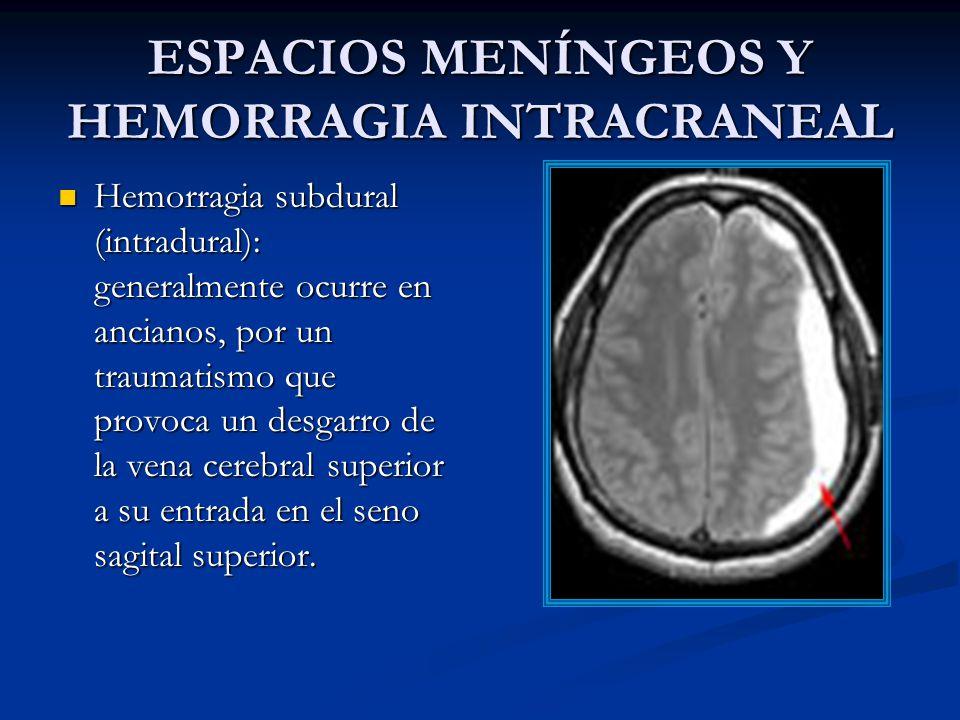 ESPACIOS MENÍNGEOS Y HEMORRAGIA INTRACRANEAL Hemorragia subdural (intradural): generalmente ocurre en ancianos, por un traumatismo que provoca un desgarro de la vena cerebral superior a su entrada en el seno sagital superior.