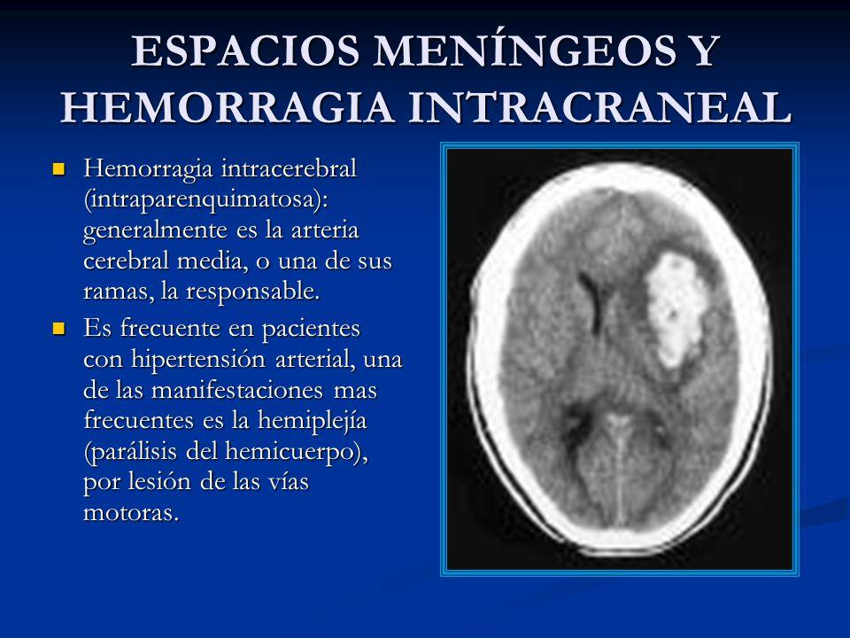 ESPACIOS MENÍNGEOS Y HEMORRAGIA INTRACRANEAL Hemorragia intracerebral (intraparenquimatosa): generalmente es la arteria cerebral media, o una de sus ramas, la responsable.