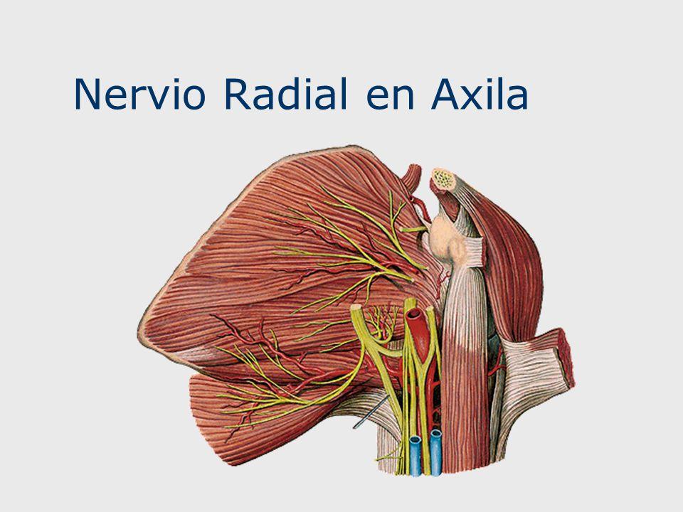 Nervio Radial en Axila