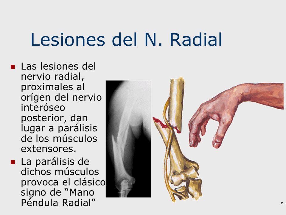 Lesiones del N. Radial Las lesiones del nervio radial, proximales al orígen del nervio interóseo posterior, dan lugar a parálisis de los músculos exte