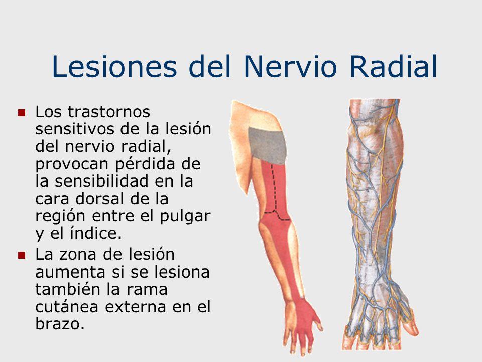Lesiones del Nervio Radial Los trastornos sensitivos de la lesión del nervio radial, provocan pérdida de la sensibilidad en la cara dorsal de la regió
