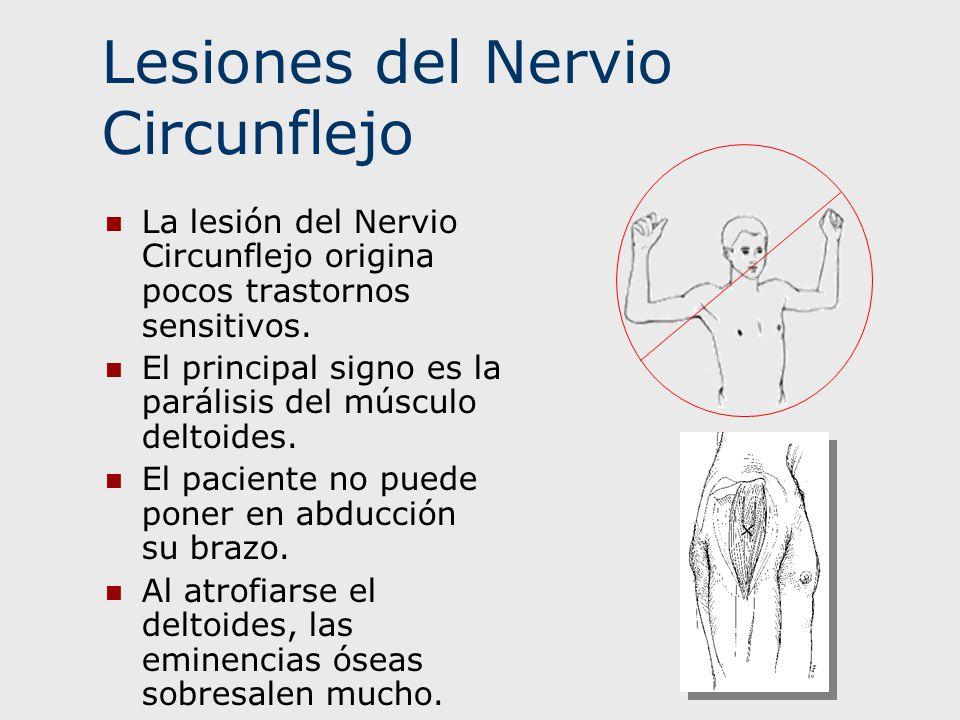 Lesiones del Nervio Circunflejo La lesión del Nervio Circunflejo origina pocos trastornos sensitivos. El principal signo es la parálisis del músculo d