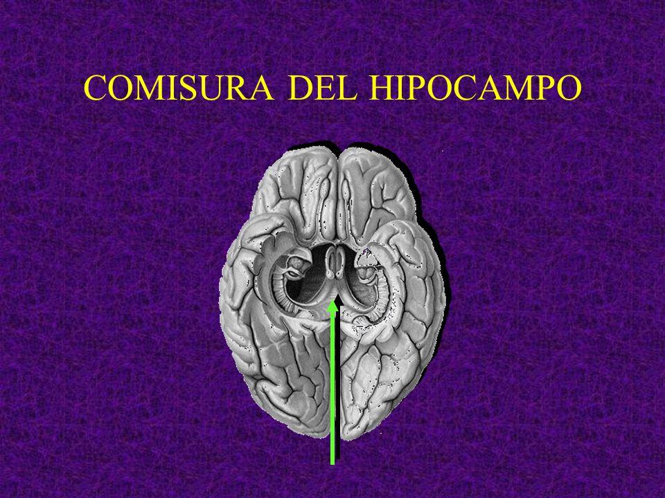 COMISURA DEL HIPOCAMPO