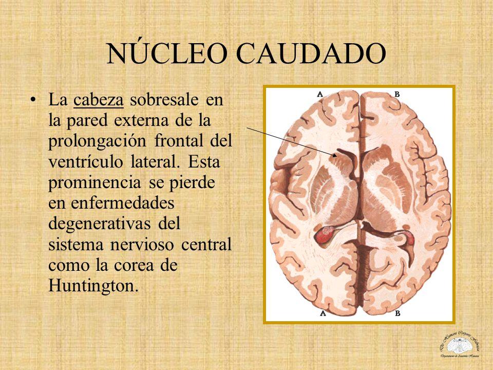 NÚCLEO CAUDADO La cabeza sobresale en la pared externa de la prolongación frontal del ventrículo lateral. Esta prominencia se pierde en enfermedades d