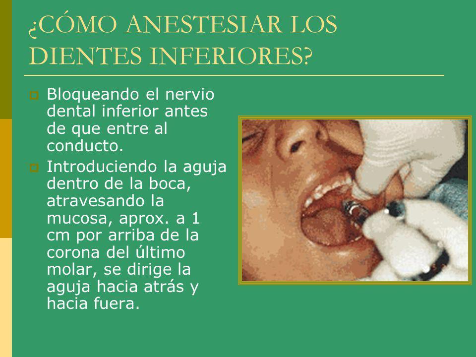 ¿CÓMO ANESTESIAR LOS DIENTES INFERIORES? Bloqueando el nervio dental inferior antes de que entre al conducto. Introduciendo la aguja dentro de la boca