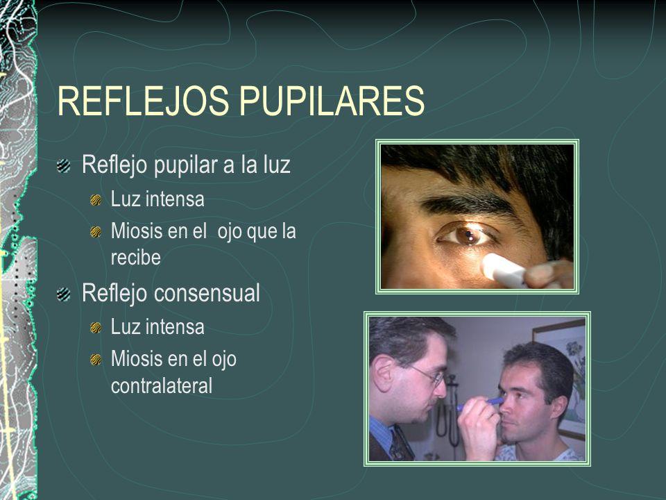 REFLEJOS PUPILARES Reflejo pupilar a la luz Luz intensa Miosis en el ojo que la recibe Reflejo consensual Luz intensa Miosis en el ojo contralateral