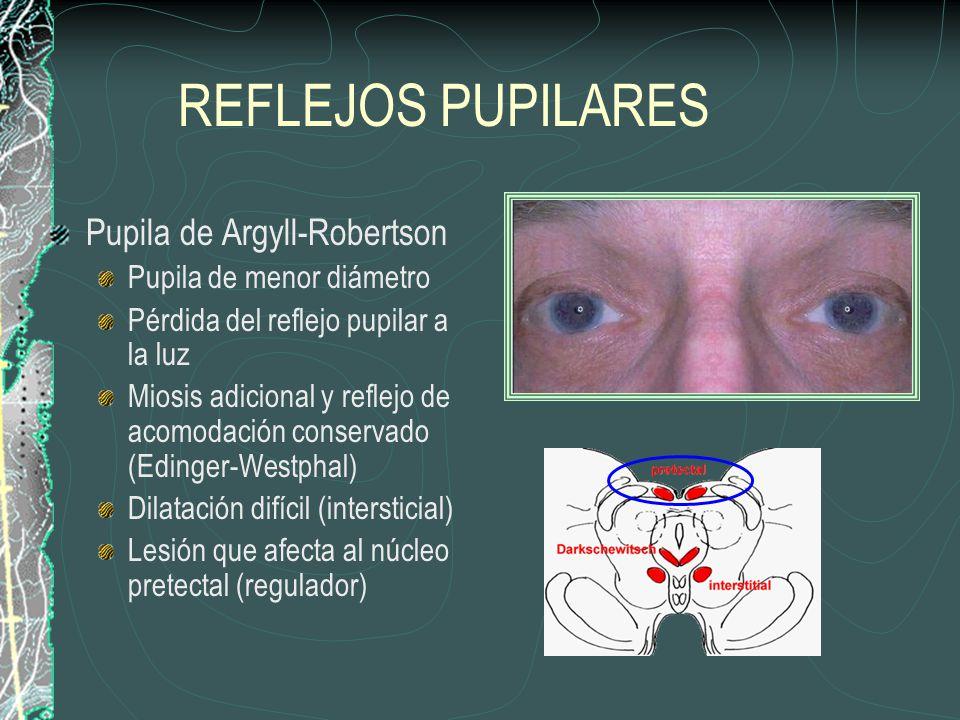 REFLEJOS PUPILARES Pupila de Argyll-Robertson Pupila de menor diámetro Pérdida del reflejo pupilar a la luz Miosis adicional y reflejo de acomodación conservado (Edinger-Westphal) Dilatación difícil (intersticial) Lesión que afecta al núcleo pretectal (regulador)