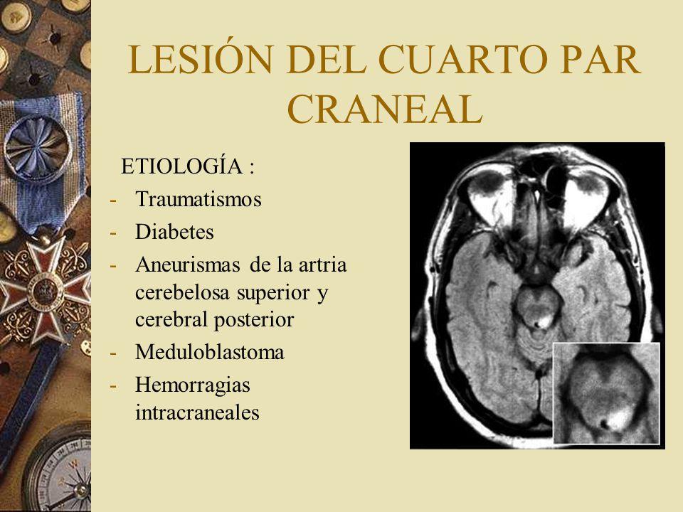 LESIÓN DEL CUARTO PAR CRANEAL ETIOLOGÍA : -Traumatismos -Diabetes -Aneurismas de la artria cerebelosa superior y cerebral posterior -Meduloblastoma -H
