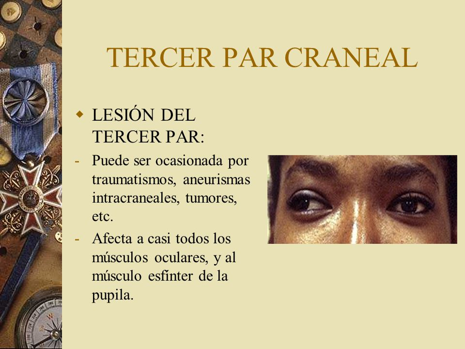 LESIÓN DEL TERCER PAR CRANEAL DATOS CLÍNICOS : -Ptosis palpebral -Dilatación pupilar (Midriasis).