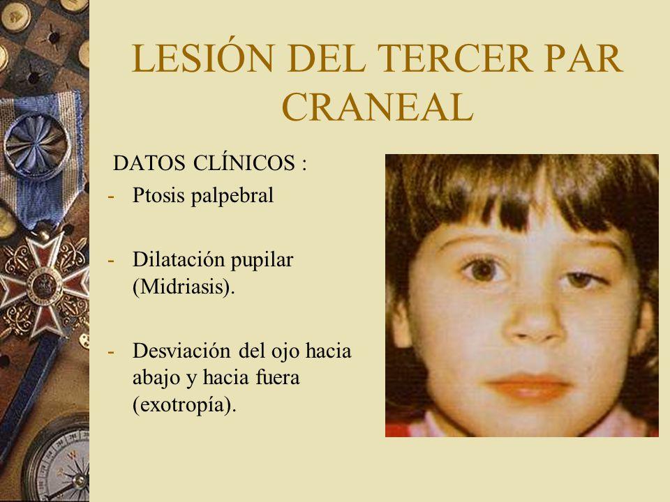 LESIÓN DEL TERCER PAR CRANEAL DATOS CLÍNICOS : -Ptosis palpebral -Dilatación pupilar (Midriasis). -Desviación del ojo hacia abajo y hacia fuera (exotr