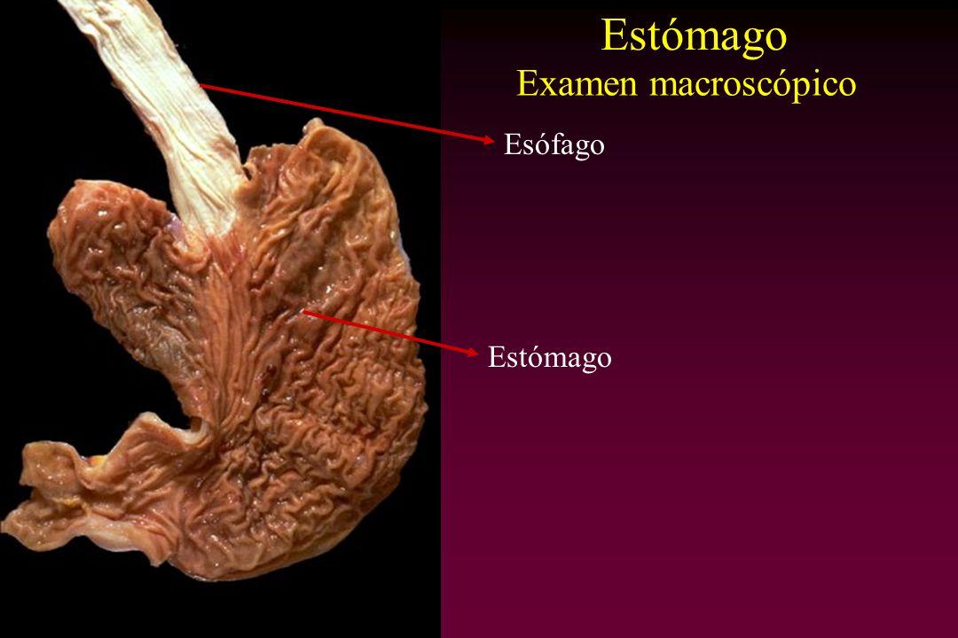 Esófago Estómago Examen macroscópico