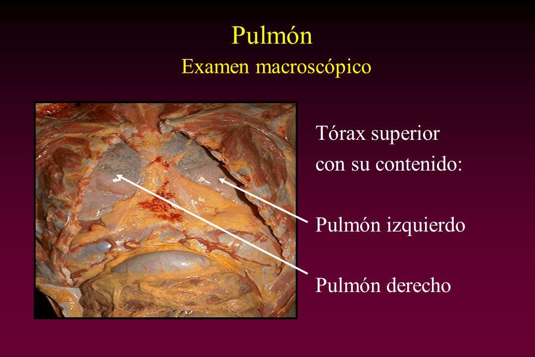 Pulmón Tórax superior con su contenido: Pulmón izquierdo Pulmón derecho Examen macroscópico