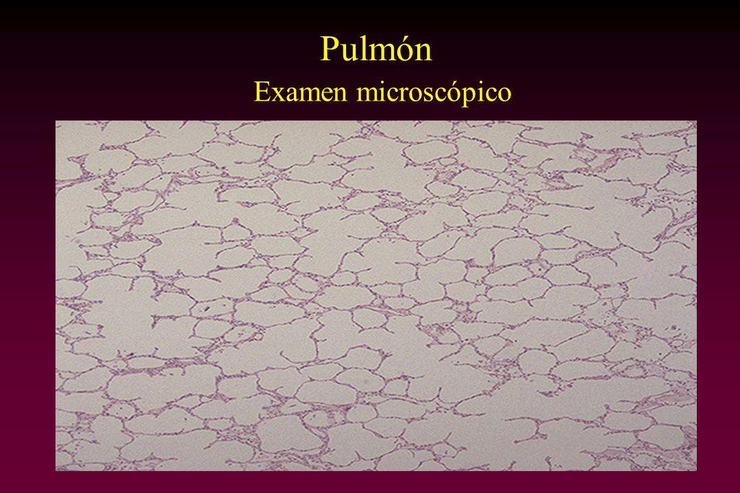 Cara externa Sección Riñón Examen macroscópico