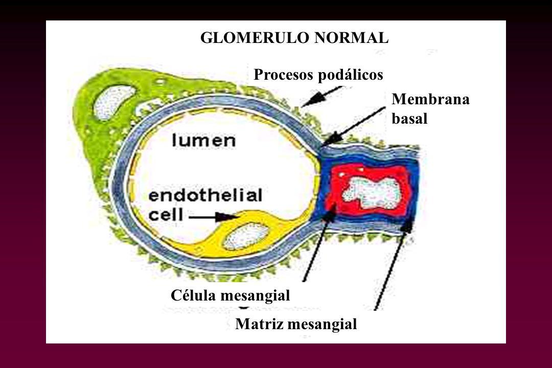 Célula mesangial Matriz mesangial GLOMERULO NORMAL Procesos podálicos Membrana basal