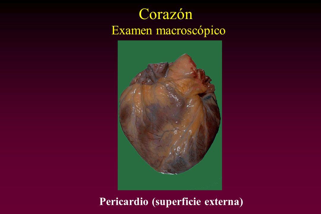 Pericardio (superficie externa) Corazón Examen macroscópico