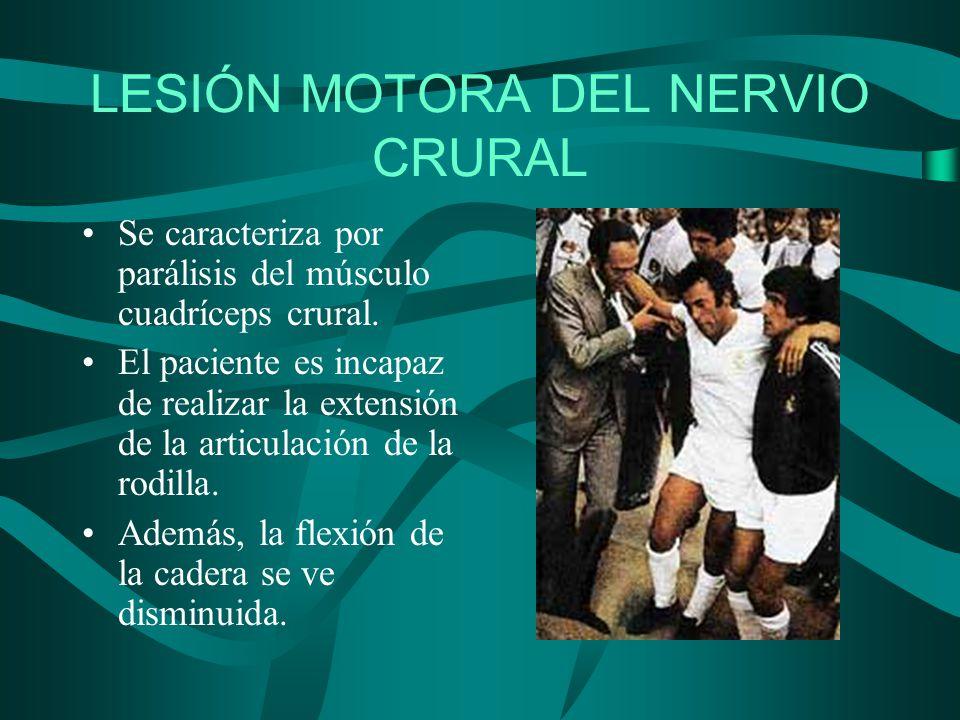 LESIÓN MOTORA DEL NERVIO CRURAL Se caracteriza por parálisis del músculo cuadríceps crural. El paciente es incapaz de realizar la extensión de la arti