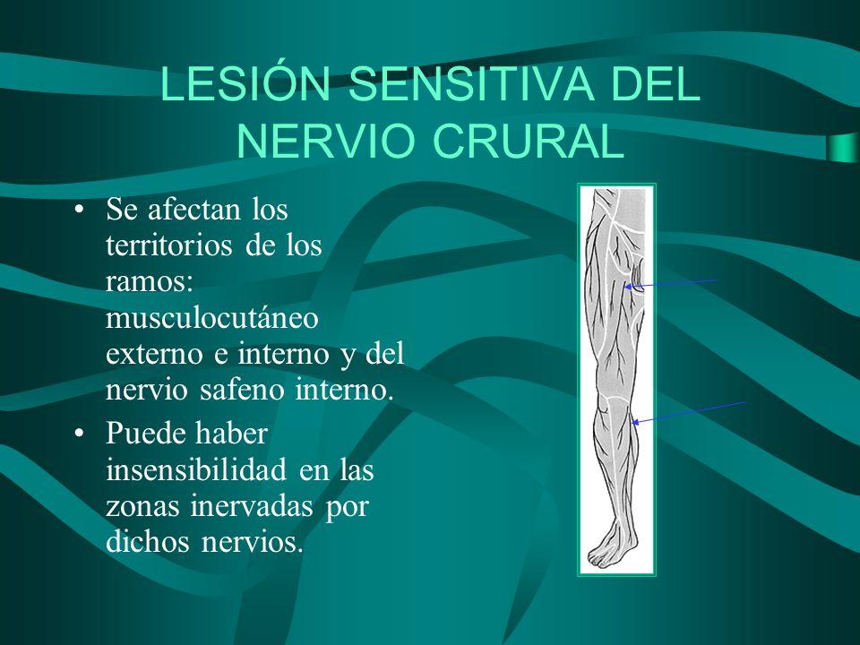 LESIÓN SENSITIVA DEL NERVIO CRURAL Se afectan los territorios de los ramos: musculocutáneo externo e interno y del nervio safeno interno. Puede haber