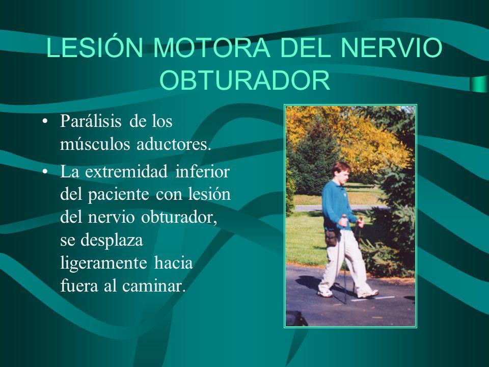 LESIÓN MOTORA DEL NERVIO OBTURADOR Parálisis de los músculos aductores. La extremidad inferior del paciente con lesión del nervio obturador, se despla