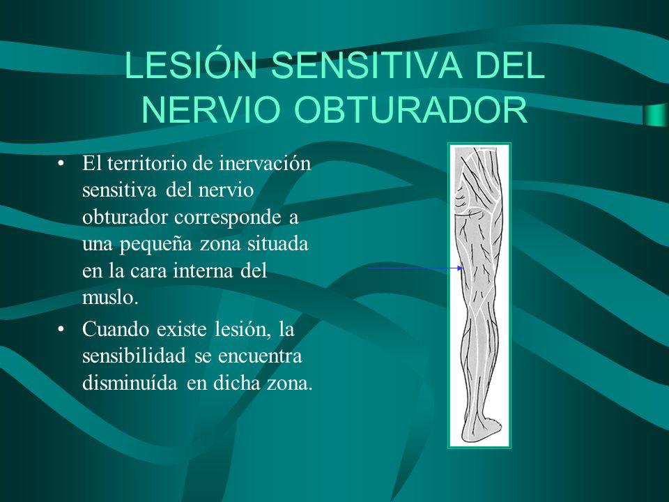 LESIÓN SENSITIVA DEL NERVIO OBTURADOR El territorio de inervación sensitiva del nervio obturador corresponde a una pequeña zona situada en la cara int