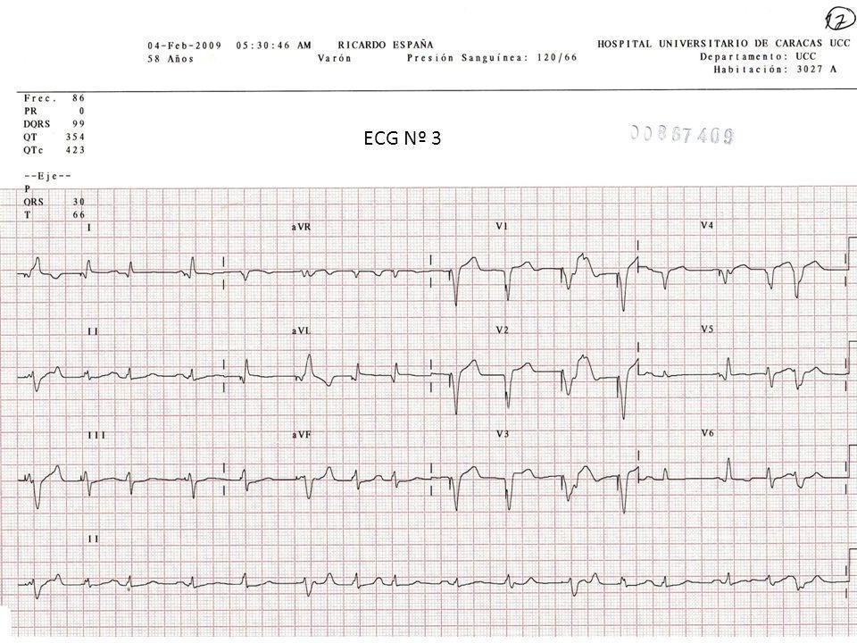 ECG Nº 3
