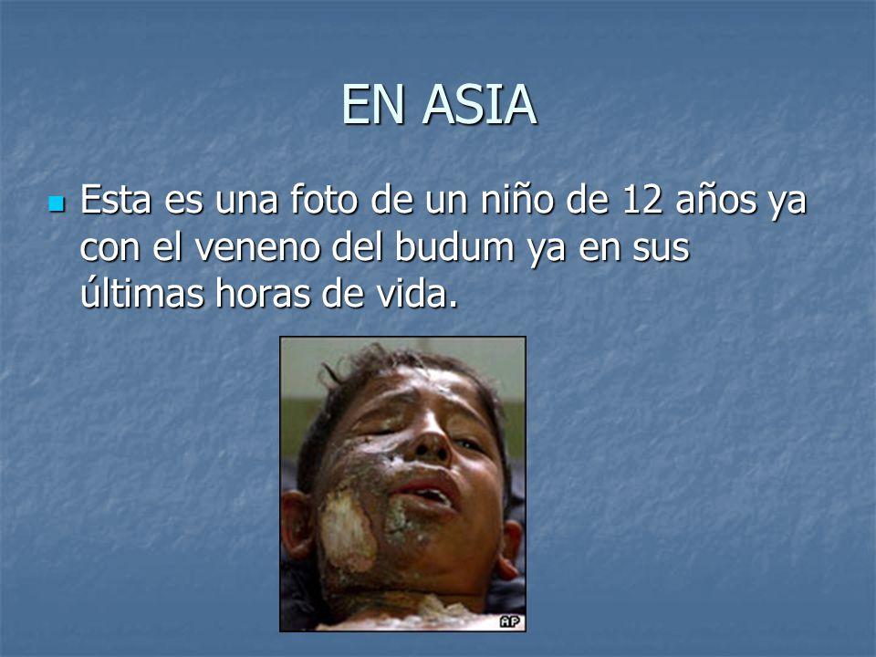 EN ASIA Esta es una foto de un niño de 12 años ya con el veneno del budum ya en sus últimas horas de vida. Esta es una foto de un niño de 12 años ya c