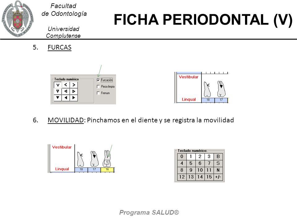Facultad de Odontología Universidad Complutense FICHA PERIODONTAL (V) 5.FURCAS 6.MOVILIDAD: Pinchamos en el diente y se registra la movilidad Programa SALUD®