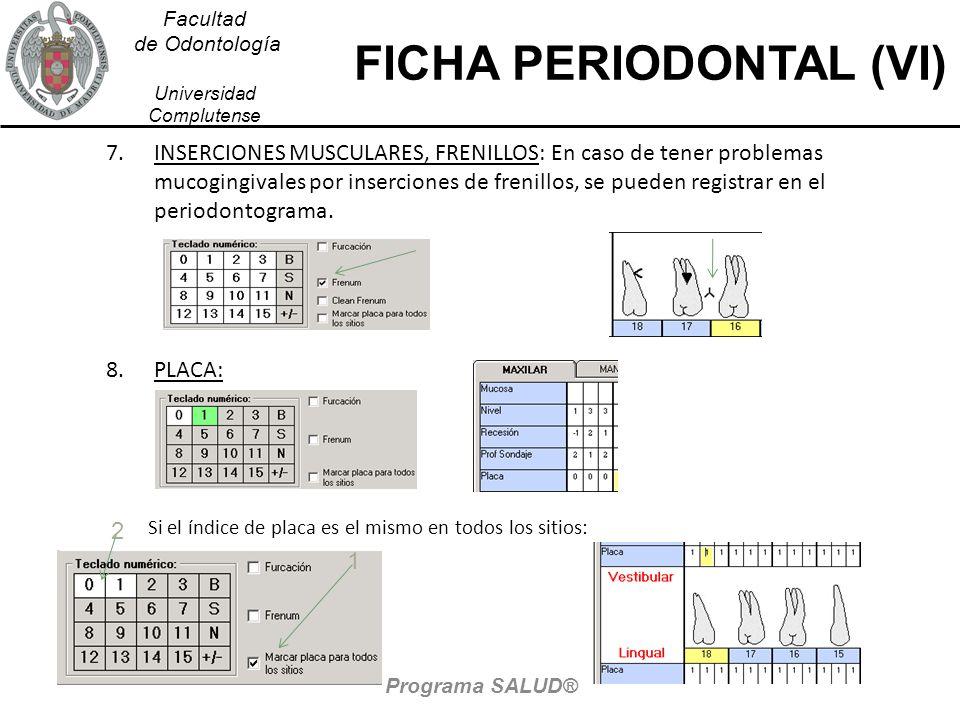 Facultad de Odontología Universidad Complutense FICHA PERIODONTAL (VI) 7.INSERCIONES MUSCULARES, FRENILLOS: En caso de tener problemas mucogingivales
