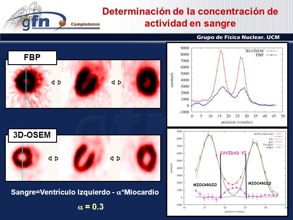 3D-OSEMFBP Sangre=Ventrículo Izquierdo - *Miocardio = 0.3 CAVIDAD VI MIOCARDIO MIOCARDI0 Determinación de la concentración de actividad en sangre
