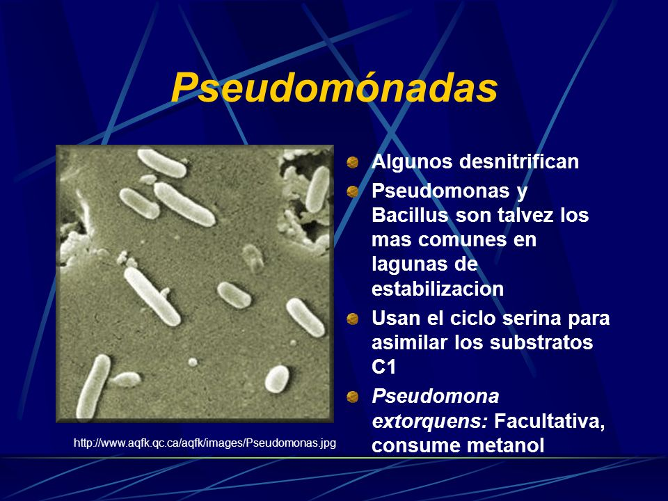 Pseudomónadas Móviles por uno o varios flagelos polares, aerobios.