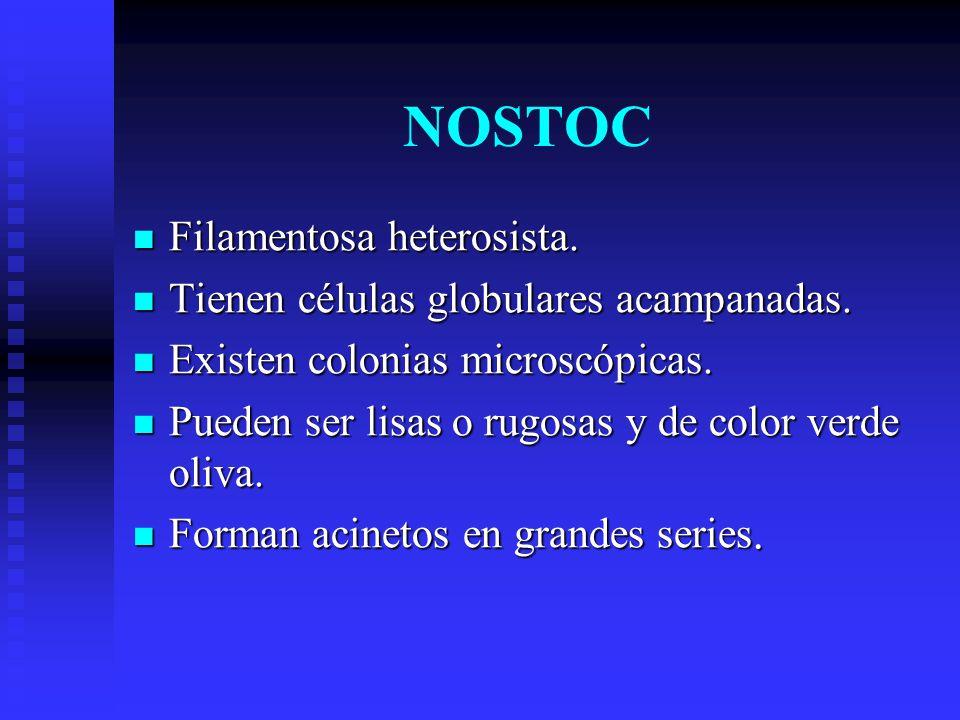 NOSTOC Filamentosa heterosista.Filamentosa heterosista.