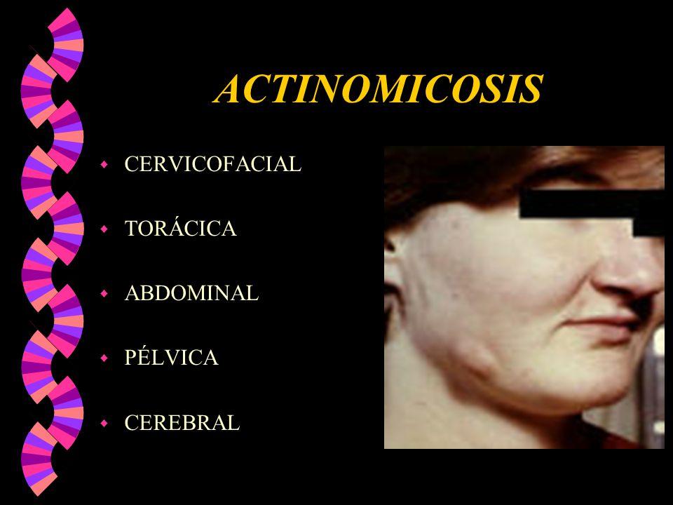 ACTINOMICOSIS w CERVICOFACIAL w TORÁCICA w ABDOMINAL w PÉLVICA w CEREBRAL