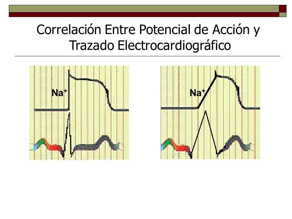 Correlación Entre Potencial de Acción y Trazado Electrocardiográfico BLOQUEO DE CANALES DE SODIO FUNCIONAMIENTO NORMAL DE CANALES Na +