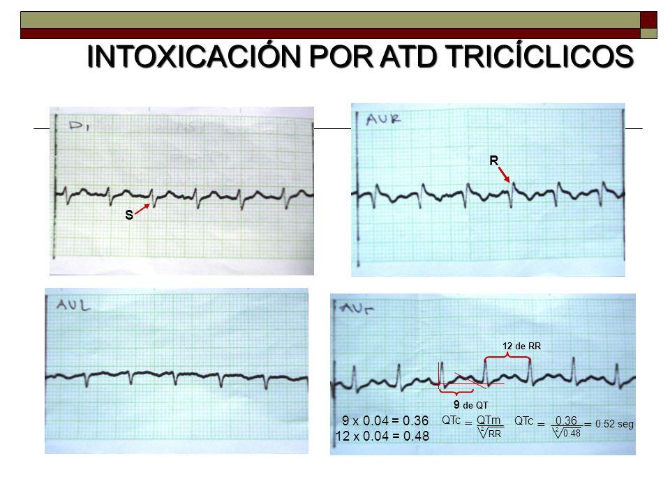S R 9 de QT 12 de RR 9 x 0.04 = 0.36 12 x 0.04 = 0.48 QTc = 2 0.36 0.48 = 0.52 seg QTmQTc = 2 RR INTOXICACIÓN POR ATD TRICÍCLICOS