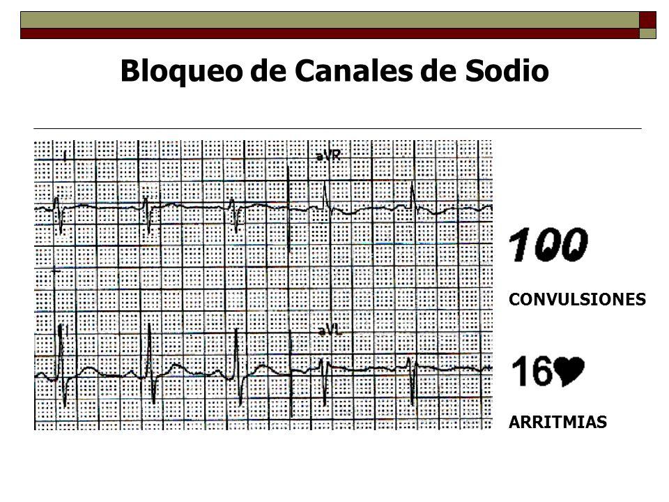 Bloqueo de Canales de Sodio QRS CONVULSIONES ARRITMIAS