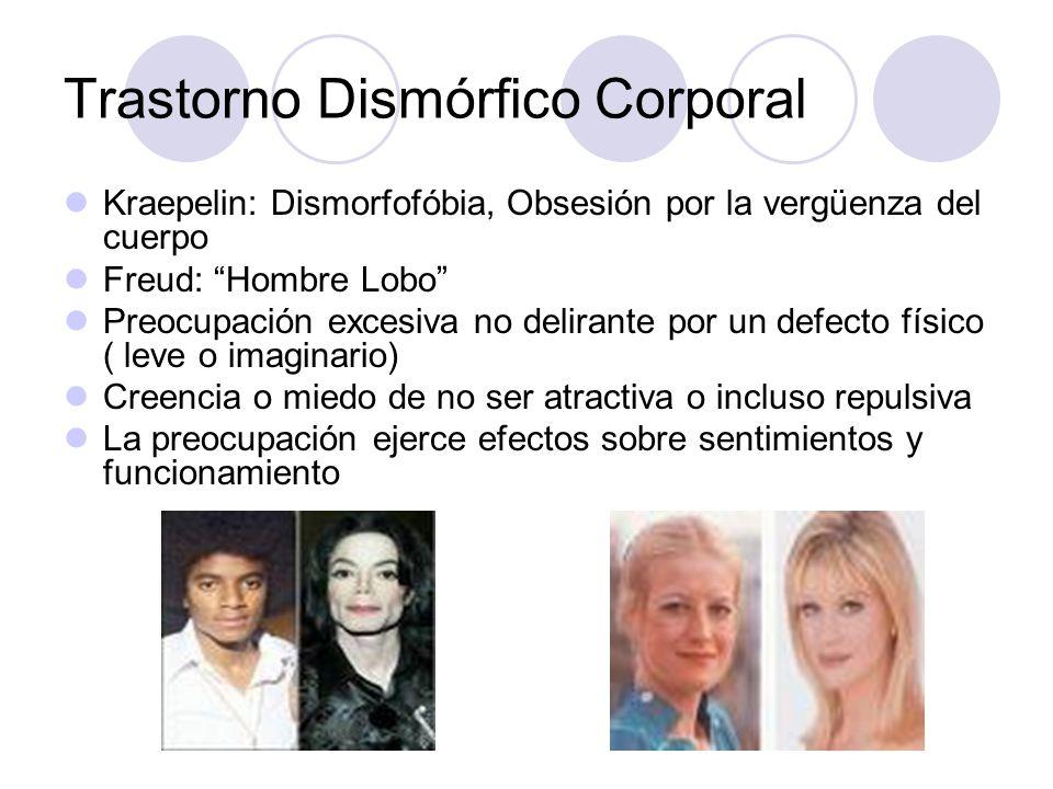 Trastorno Dismórfico Corporal Kraepelin: Dismorfofóbia, Obsesión por la vergüenza del cuerpo Freud: Hombre Lobo Preocupación excesiva no delirante por
