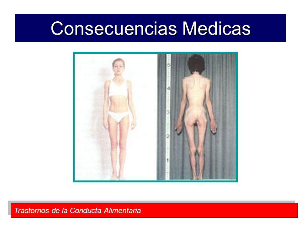 Trastornos de la Conducta Alimentaria Consecuencias Medicas