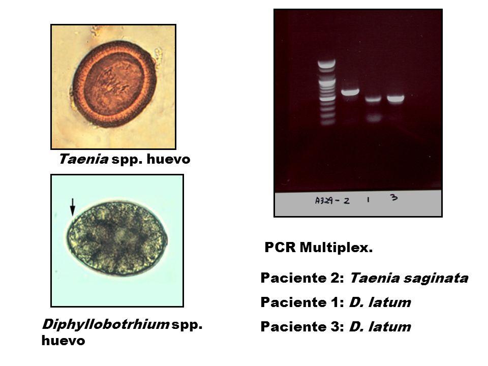 PCR Multiplex. Taenia spp. huevo Diphyllobotrhium spp. huevo Paciente 2: Taenia saginata Paciente 1: D. latum Paciente 3: D. latum
