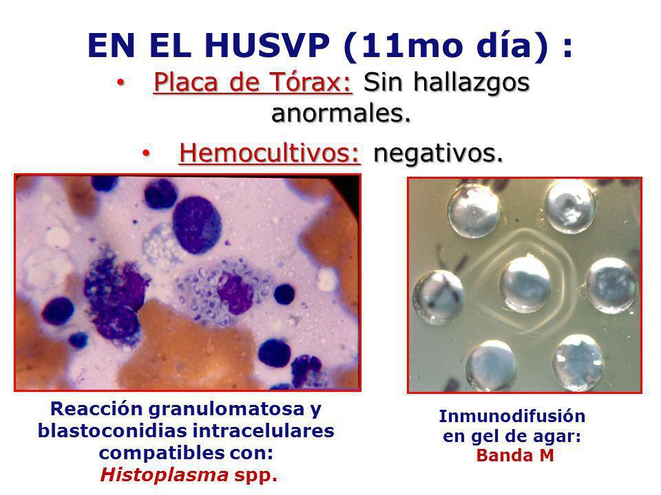 EN EL HUSVP (11mo día) : Placa de Tórax: Sin hallazgos anormales. Placa de Tórax: Sin hallazgos anormales. Hemocultivos: negativos. Hemocultivos: nega