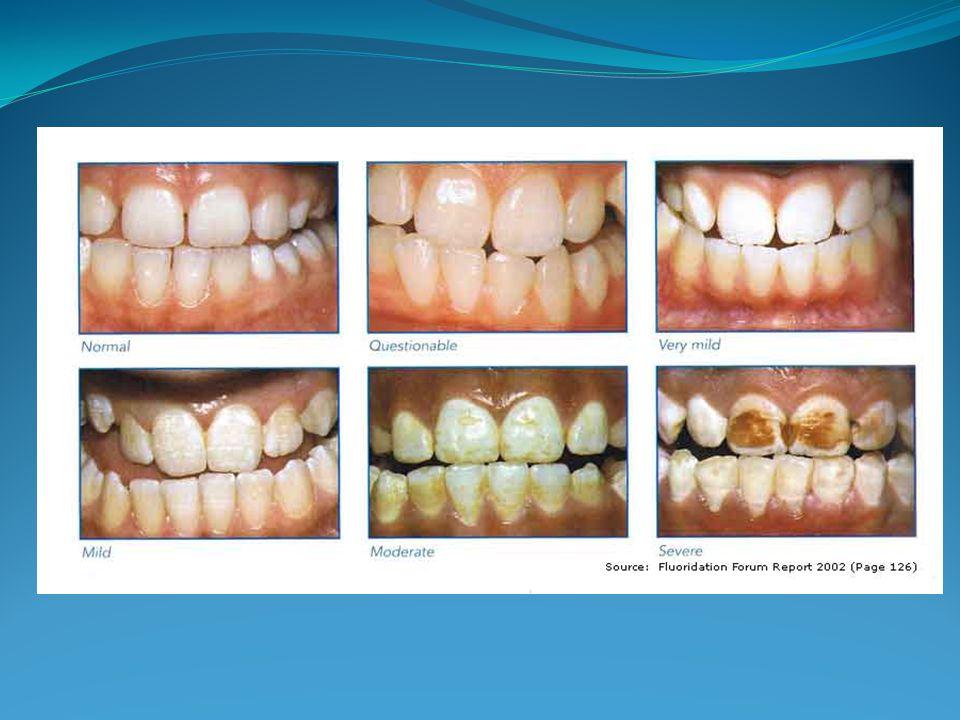 Los dientes afectados moderada o intensamente pueden mostrar tendencia a desgastarse e incluso fracturarse el esmalte.